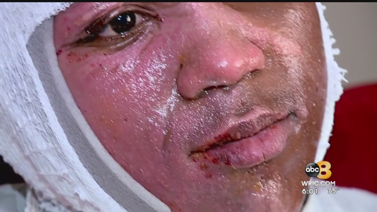 A new viral challenge is leaving teens and children around the country with horrific burns.