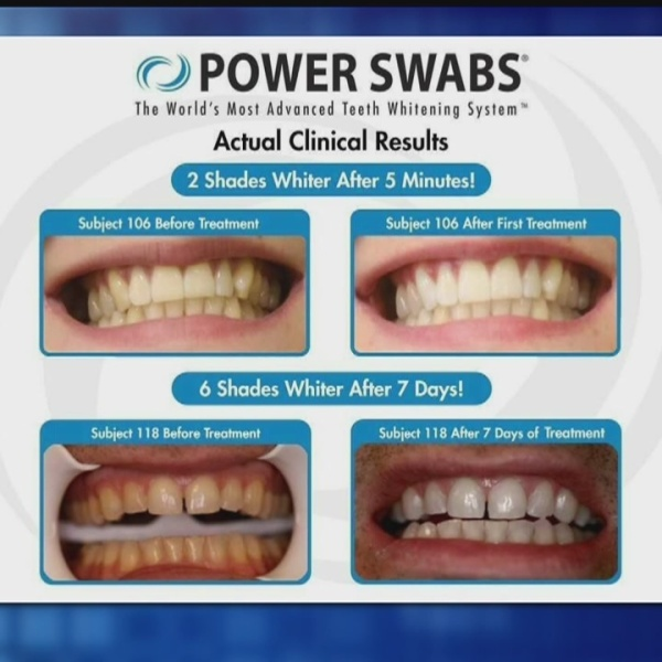 Power Swab Teeth Whitening