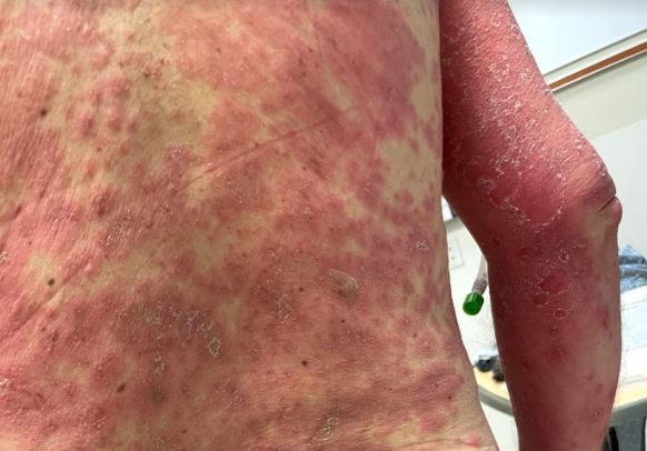 Goochland County man suffers 'rare' severe reaction to COVID-19 vaccine |  8News